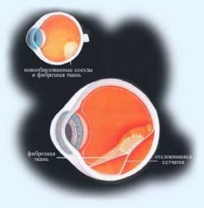 зрение при ретинопатии