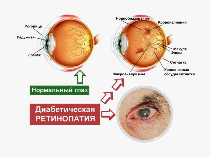 симптомы и лечение ретинопатии