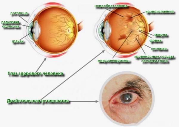 диабетическая ретинопатия примеры видов