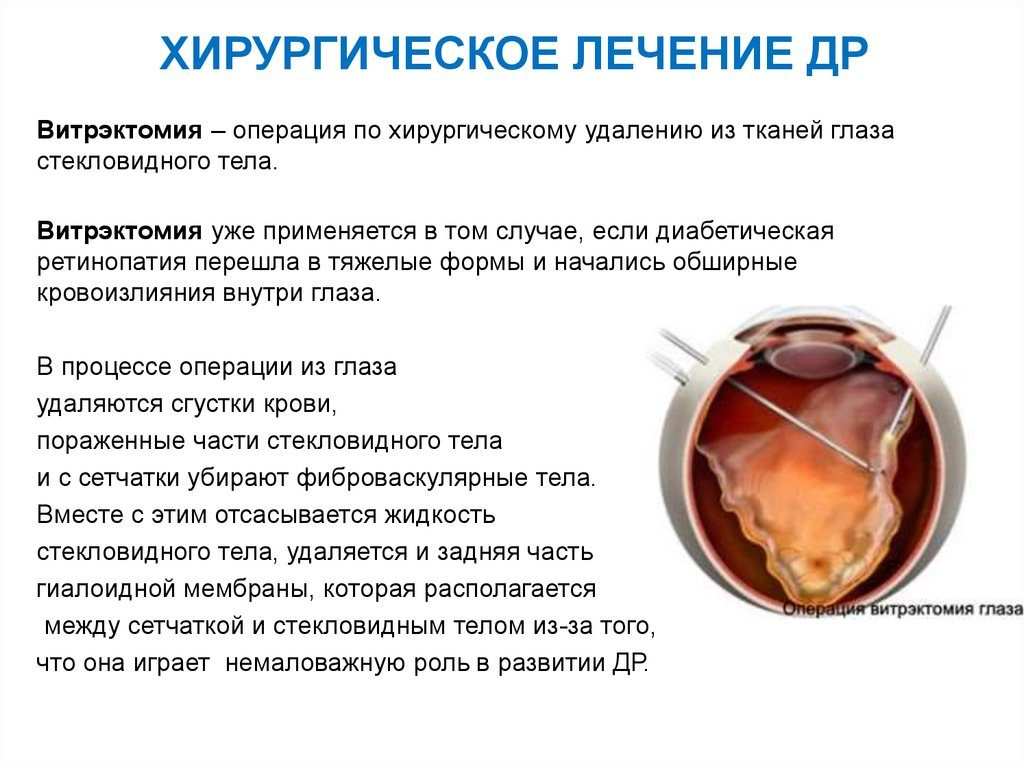 лечение ретинопатии с помощью операции