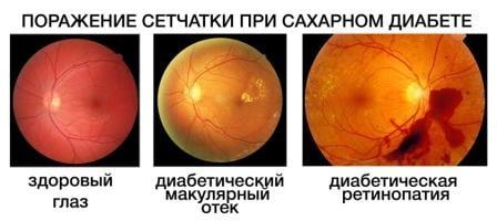 диабетическая ретинопатия и виды проявления