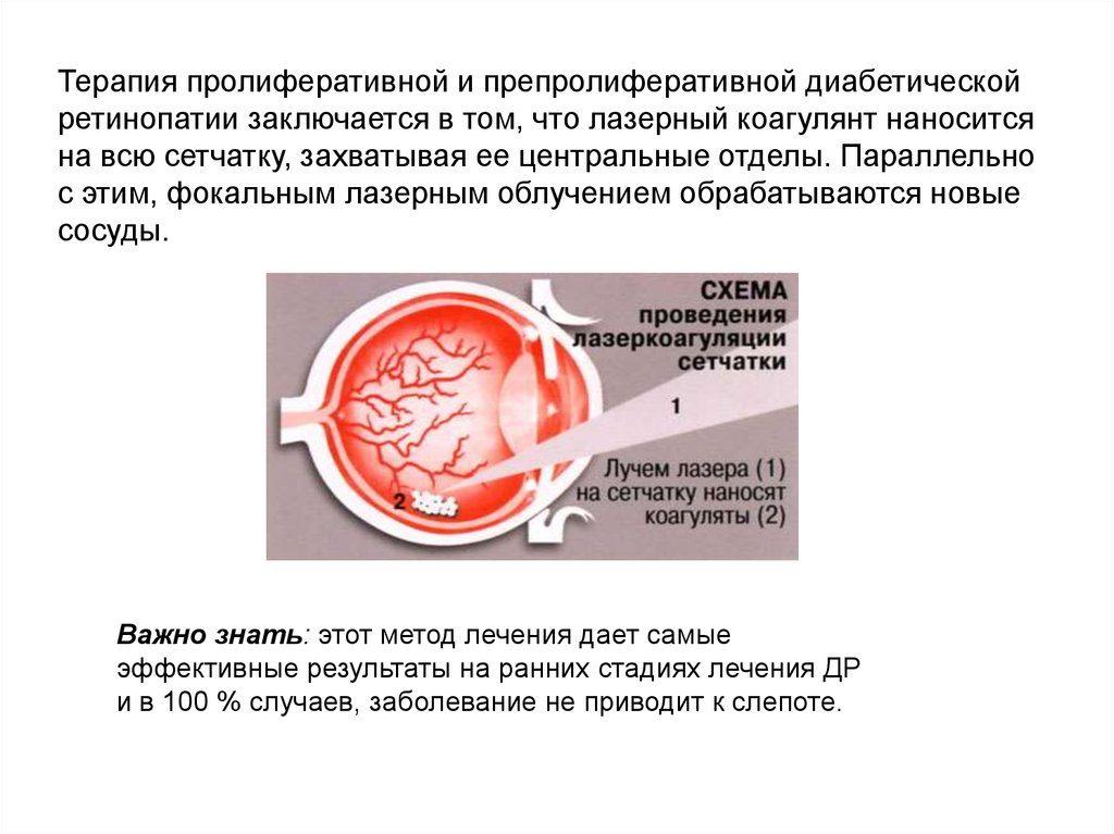 лечение ретинопатии лазером