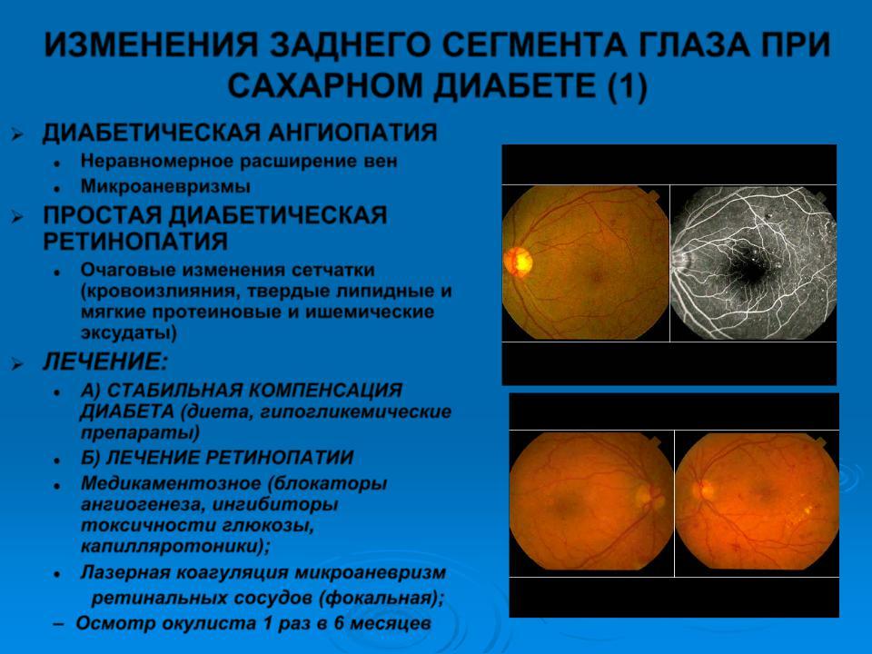 основные подходы к лечению ретинопатии