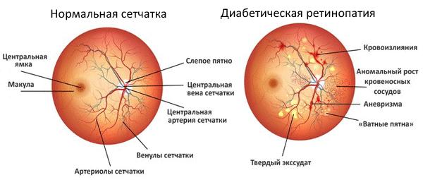 диабетическая ретинопатия схема