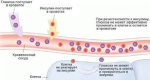 инсулинорезистентность повышена