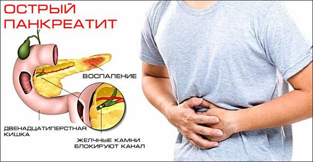 причины развития острого панкреатита