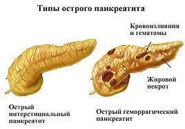 острый панкреатит два вида