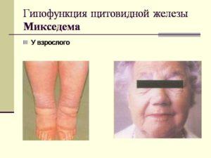 симптомы болезни Микседема