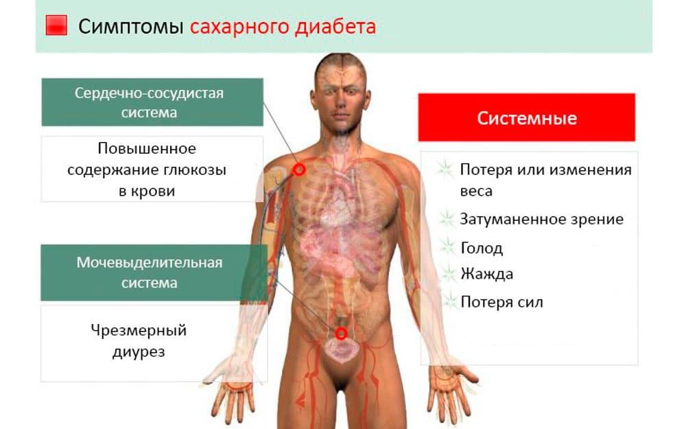 СД 2 типа у мужчин и его проявления