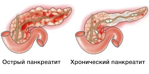 острая и хроническая формы панкреатита