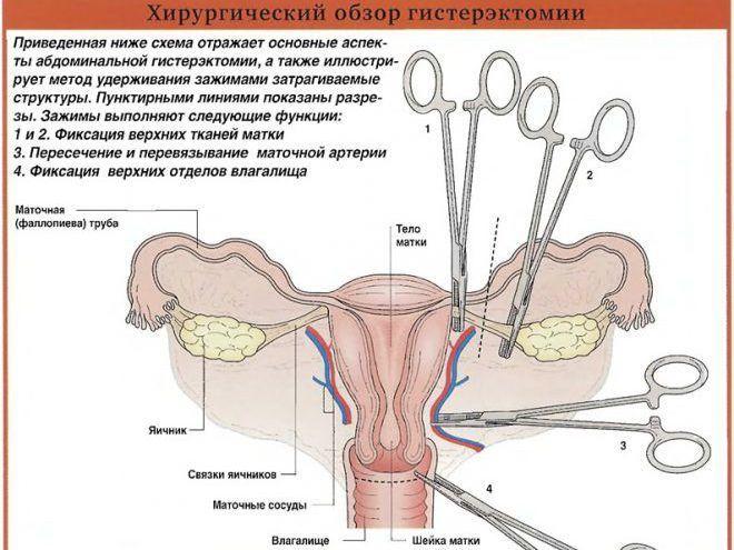 процедура гистерэктомии