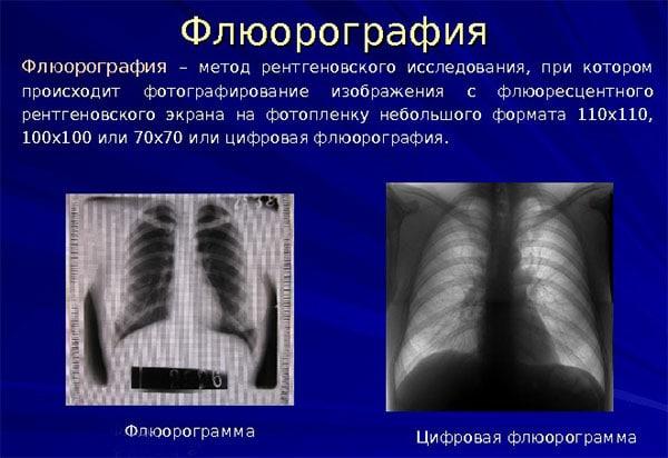 флюорография и ее особенность