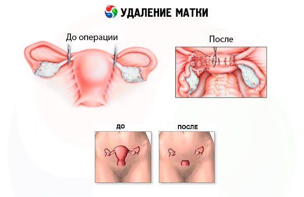 гистерэктомия и ее особенность