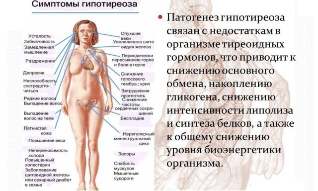гипотиреоз и его проявления