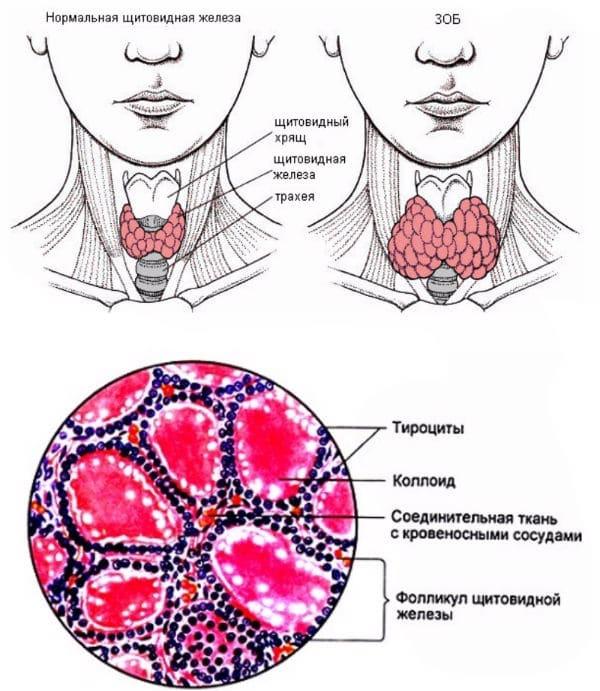 коллоидный зоб щитовидки