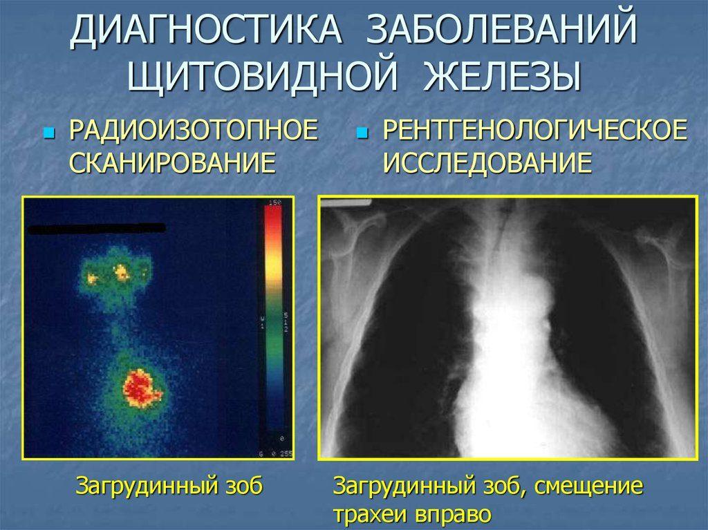 загрудинный зоб виды диагностики