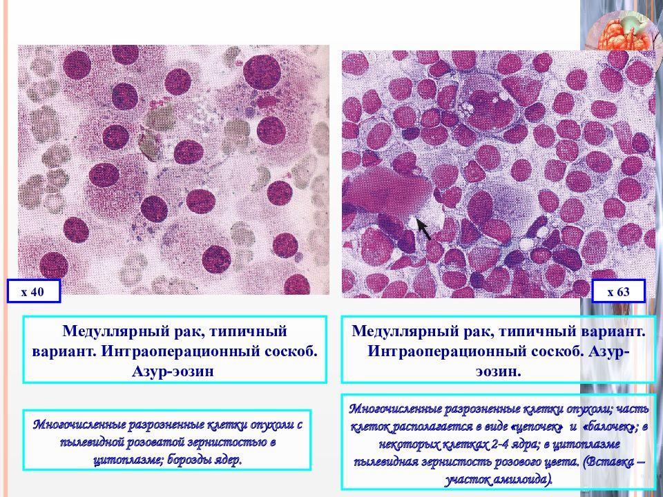 медуллярный рак ЩЖ симптомы