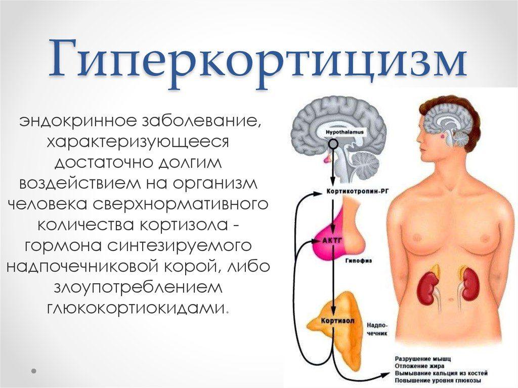 гиперкортицизм приччины развития