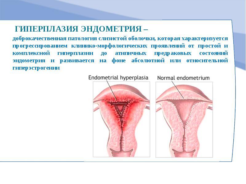 гиперплазия эндометрия почему возникает