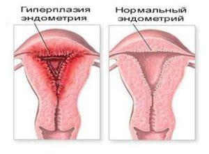 гиперплазия и ее вид