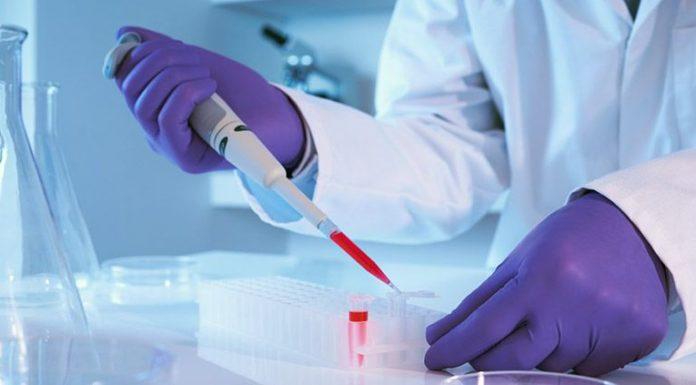антитела к тиреопероксидазе ЩЖ