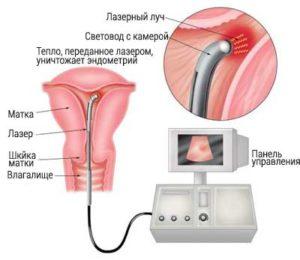 гиперплазия эндометрия и ее способы лечение