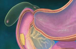панкреозимин и его действие