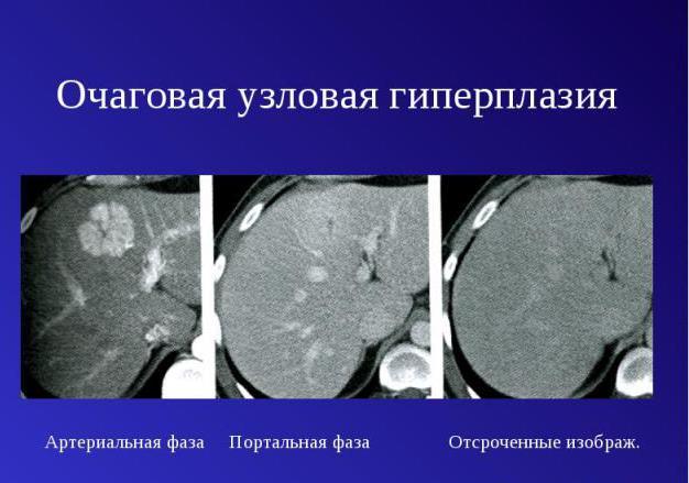 гиперплазия эндометрия очаговая форма