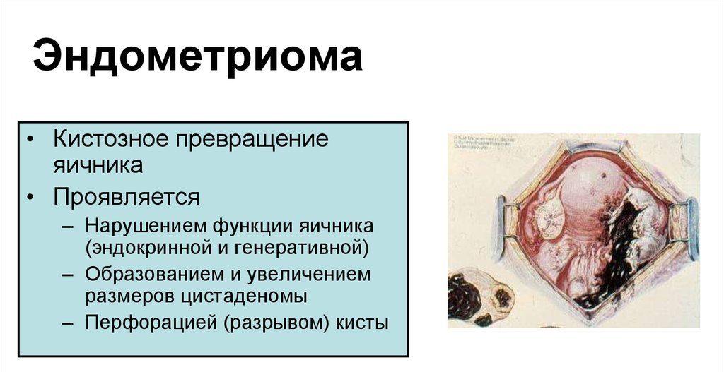 эндометриома и ее характер