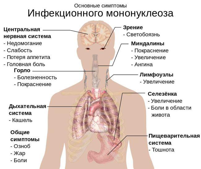 проявления инфекционного мононуклеоза