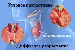 диффузные нарушения в щитовидке