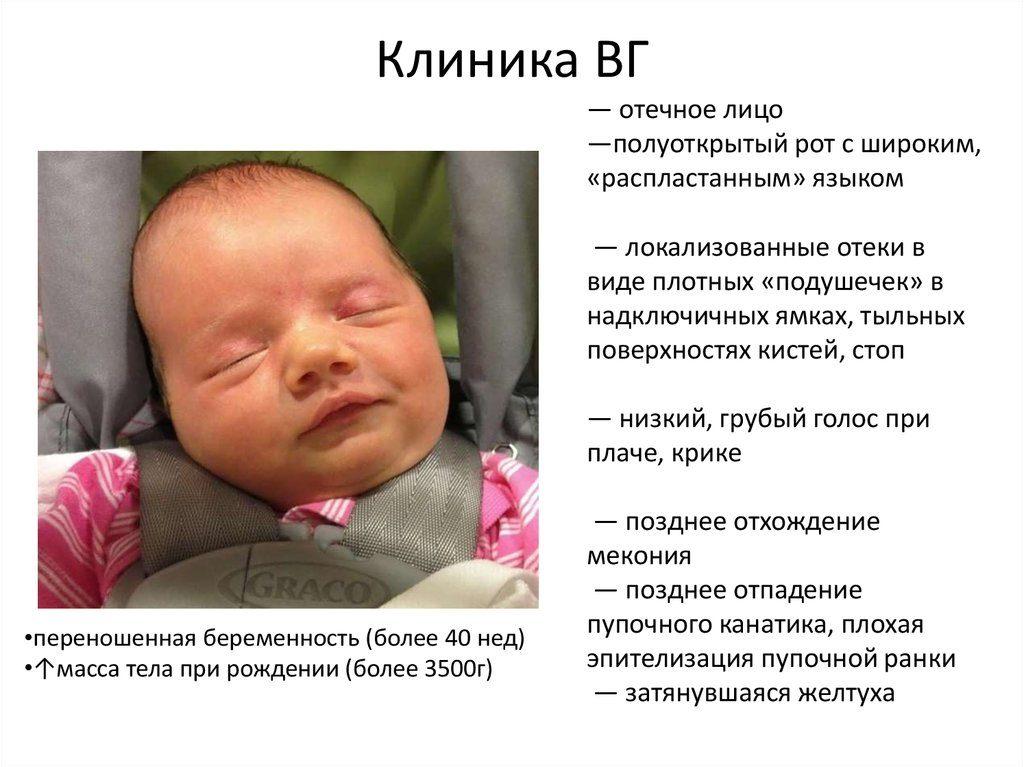 гипотиреоз у новорожденных и его клиника