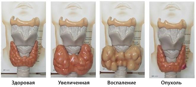 острый тиреоидит и его развитие