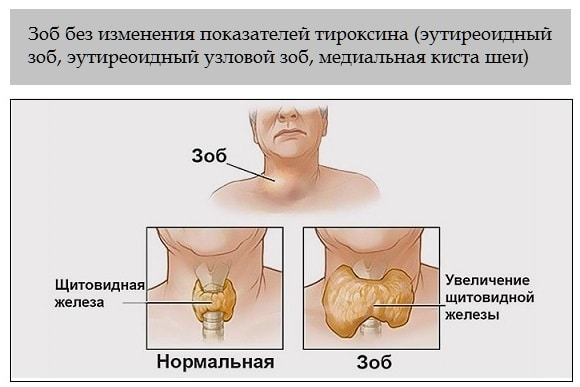 эутиреоидный зоб ЩЖ