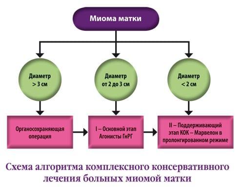подходы к лечению миомы матки