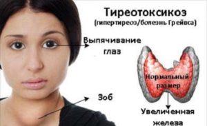 признаки тиреотоксикоза