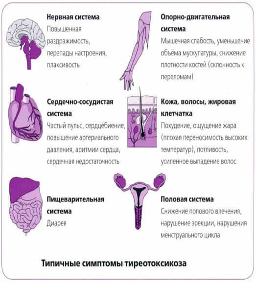 болезнь Грейвса и ее проявления