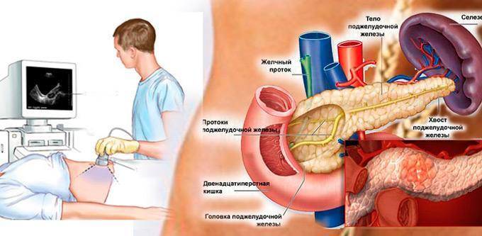 диагностика ПЖ