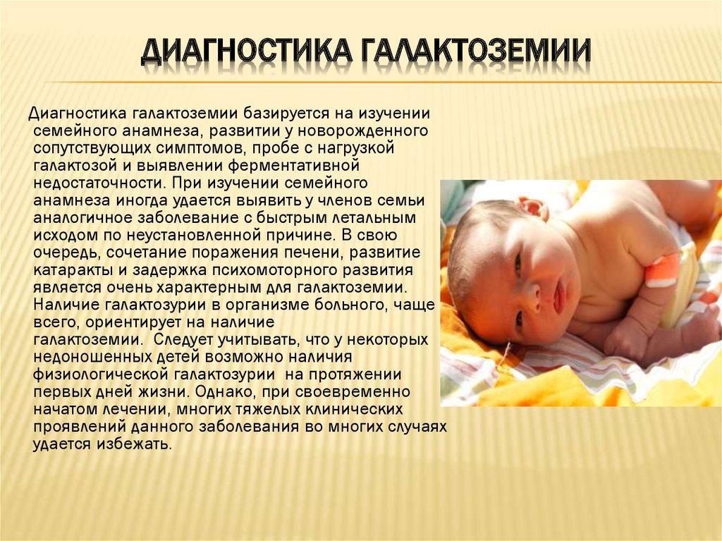 галактоземия у новорожденных и ее диагностика