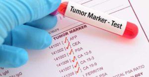 рак щитовидки и его определение