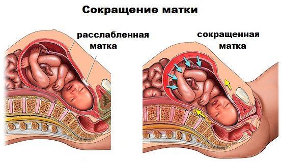 сокращение матки