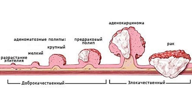 полипоз и его развитие