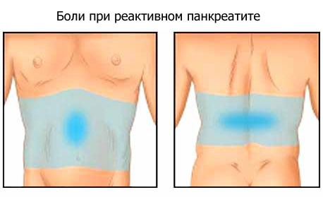 типы боли при реактивном панкреатите