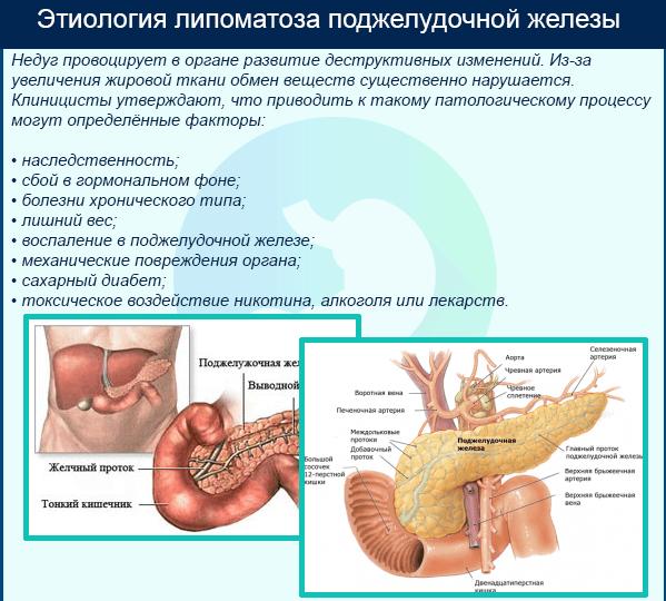 этиология липоматоза