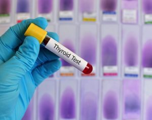 анализ крови на тиреоидные гормоны