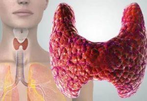 лимфоцитарный тиреоидит
