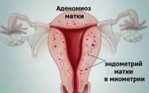 миома матки с аденомиозом