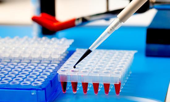 анализ крови на иммунограмму