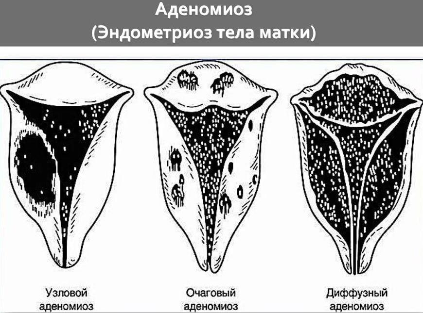аденомиоз и его виды