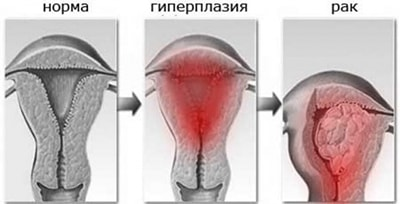 последствия гиперплазии эндометрия